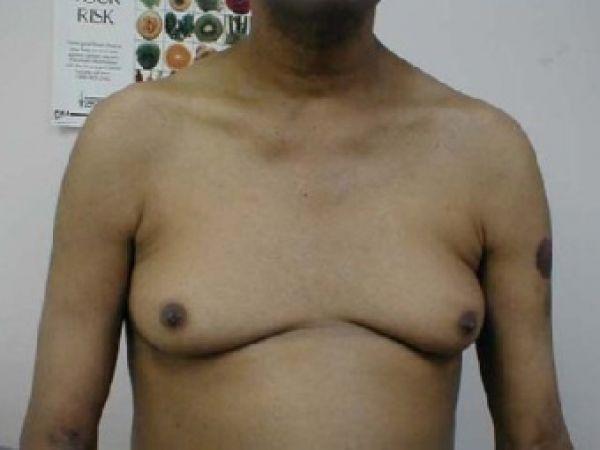 Количество британских мужчин, перенесших в 2009 году пластические операции